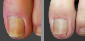 Антитоксин нано - ефективний засіб від грибка нігтів