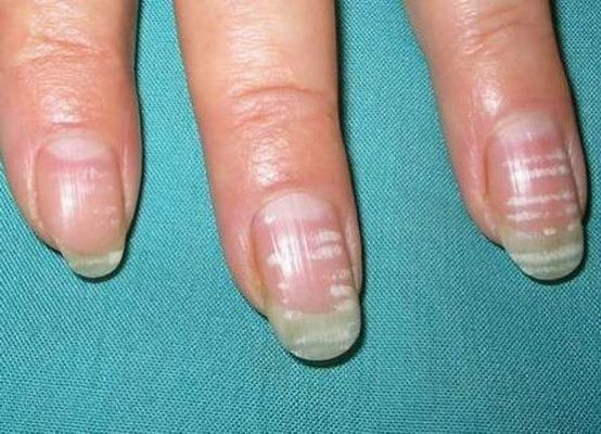 Білі плями на нігтях рук - причини і способи лікування