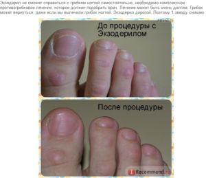 Екзодерил від грибка нігтів