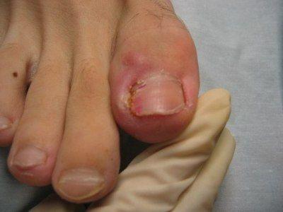 Після педикюру запалився палець - причини виникнення подібної проблеми
