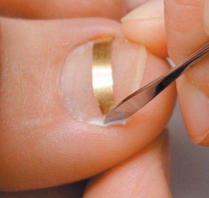 правильна підрізування нігтів