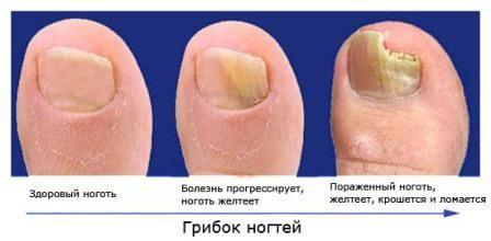 Засоби проти грибка нігтів